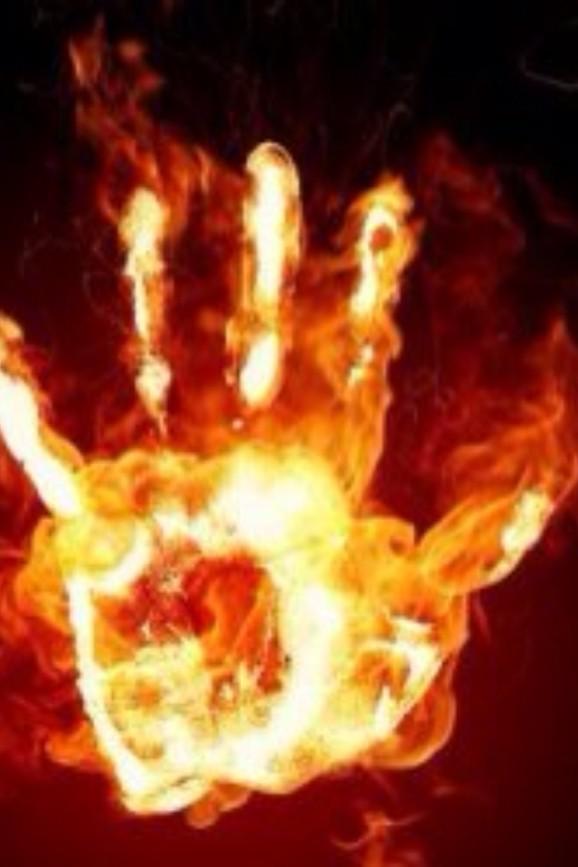 Känslan av brinnande händer nervsmärta neuropatisk smärta