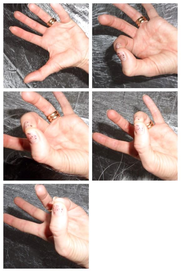 Fingerövning Muskelatrofi Cervikal Spinal Stenos Myelopati Spondylos