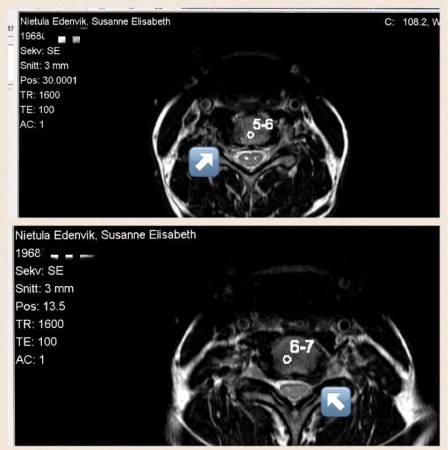 Magnetkamera Halsrygg Cervikal Spinal Stenos Myelopati Spondylos