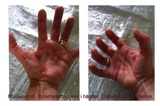 Muskelatrofi, förlamade muskler hand händer. Cervikal Spinal Stenos