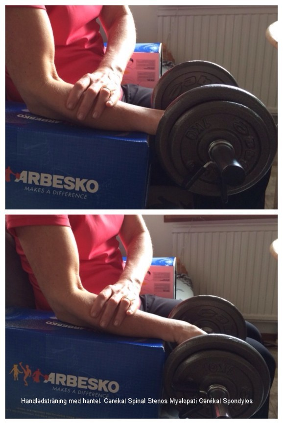 Handledsträning med hantel. Cervikal Spinal Stenos Myelopati Spondylos