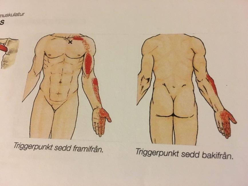 Triggerpunkter - Rörelseapparatens anatomi - En muskel och triggerpunktsguide Kristian Berg
