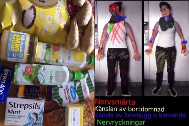 Förkylning Nervsmärta Kurerings-kit Cervikal Spinal Stenos Myelopati Spondylos