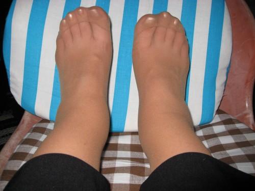 Svullna fötter