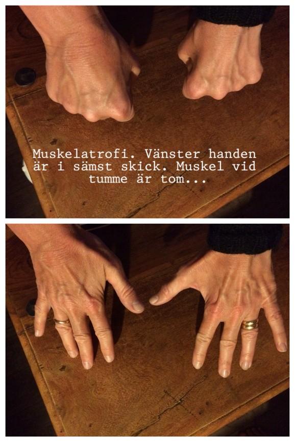 Muskelatrofi