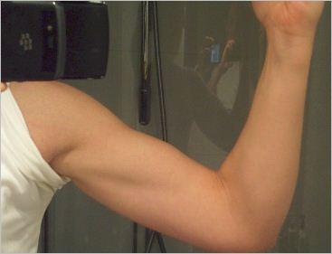 Armmuskler