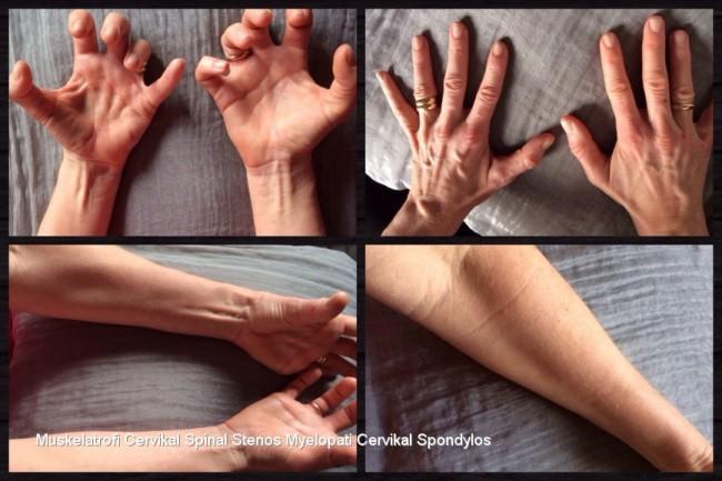Muskelatrofi, förlorade muskler. Cervikal Spinal Stenos med myelopati. Cervikal Spondylos.